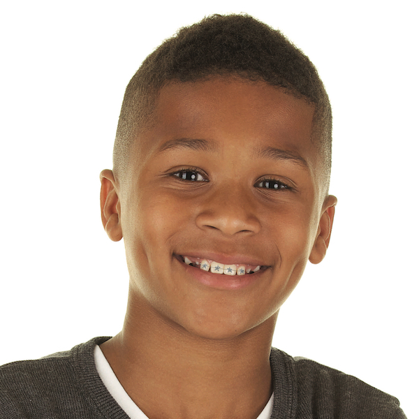 """Tips to make having braces easier for kids. Help them not only """"deal"""" with braces, but to Rock that Smile! Plus questions to ask the orthodontist."""