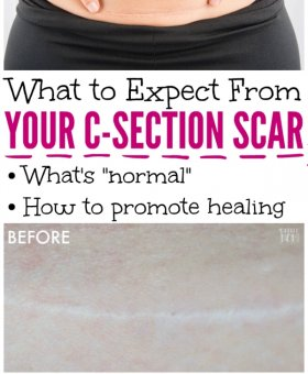Your C-Section Scar – 5 Things You Need to Know