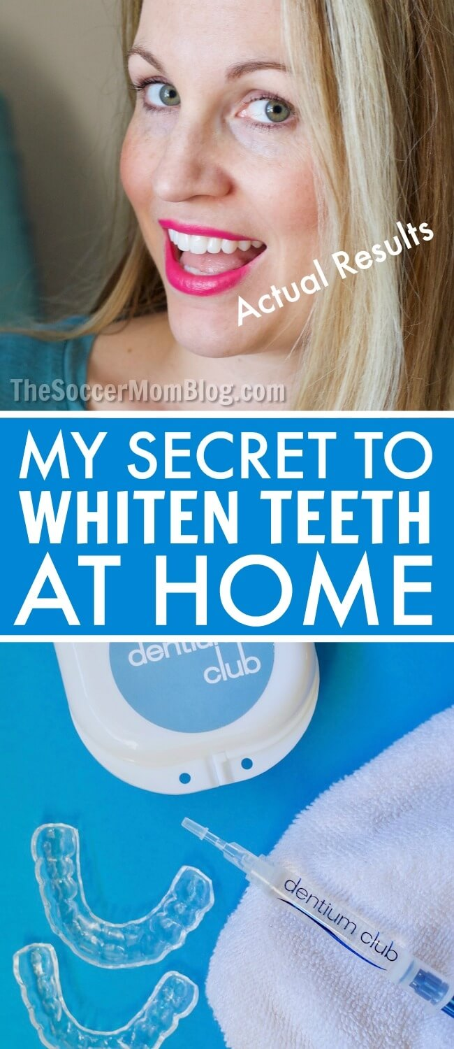 There are SO many different ways to whiten teeth at home...but they're not all created equal! We're breaking down the most common methods - from toothpastes, to strips, to gels - to find out which works best.