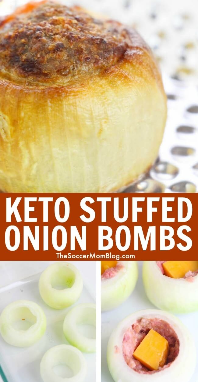 """Keto Stuffed Onion Bombs are overflowing with delicious meat and cheese— can you believe you can eat something so amazing on a """"diet""""?!"""