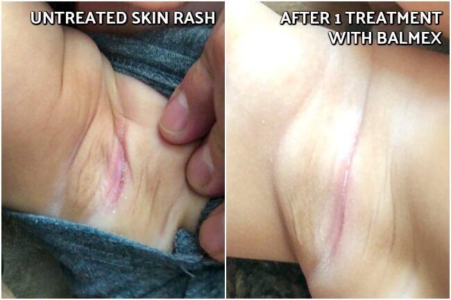 actual results using Balmex diaper rash treatment