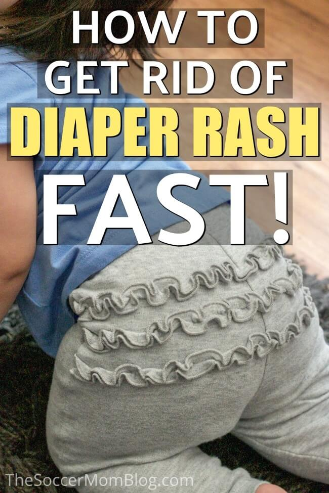 Learn how to get rid of diaper rash fast - with these steps you can see improvement in as little as one day! We'll also share our steps to prevent diaper rash from happening in the first place.
