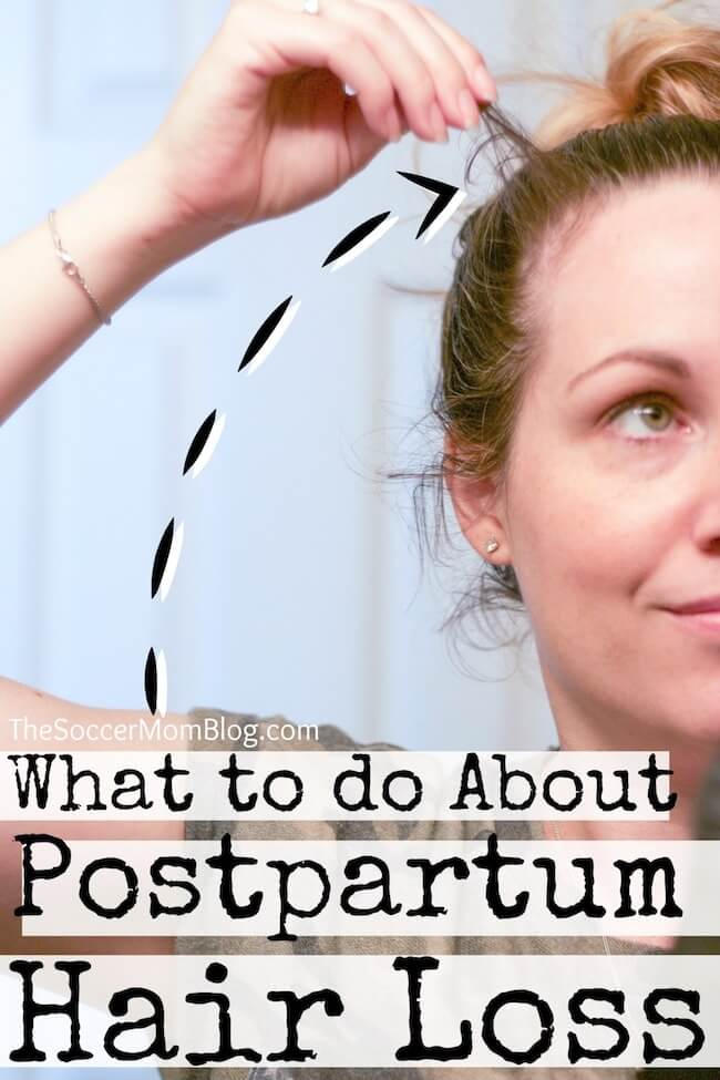 If you see a lot of hair falling out after pregnancy, you're not alone! Postpartum hair loss is a common after-effect of giving birth. Here's how to deal...
